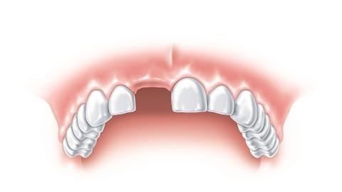 Çürük diş insan sağlığını bozuyor