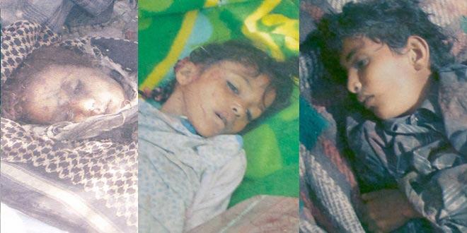 Oxfam: Yemen'de her üç saatte bir sivil ölüyor