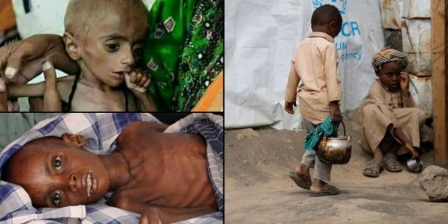 Financial Times: Yemen'deki çocukların durumu içler acısı
