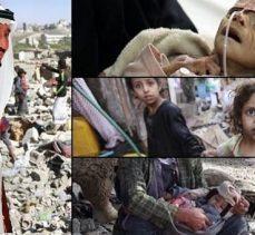 BM: Suudi Arabistan öncülüğündeki koalisyon Yemen'de savaş suçu işliyor