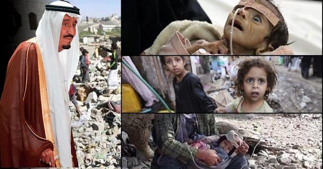 Yemen'de difteri salgını nedeniyle ölenlerin sayısı yükseliyor