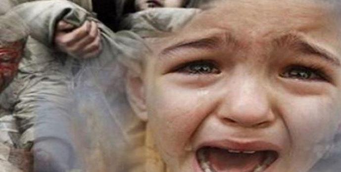 BM: Yemen'de hastanelere getirilen 50 çocuktan 30'u ölüme gönderiliyor