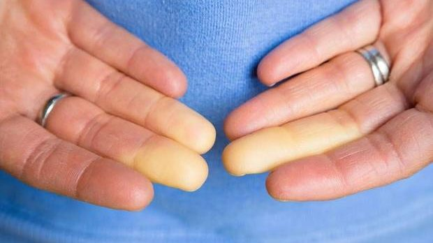 Raynaud hastalığı nedir? Belirtileri nelerdir?